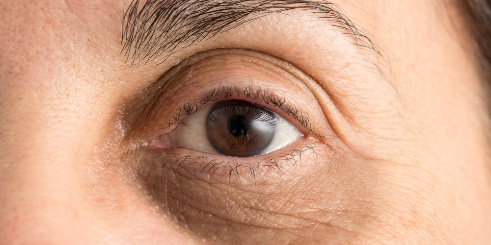 Derms share their best non invasive treatments for under eye wrinkles dark circles under eyes ccuart Images