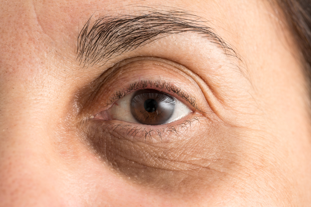 How to Get Rid of Under Eye Wrinkles: Causes, Treatments, and Cost