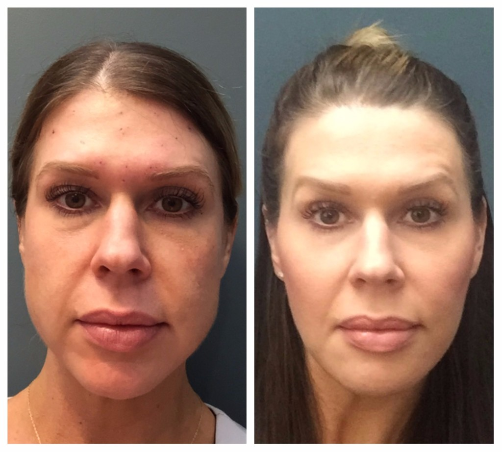 Before and after buccal fat removal