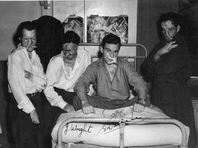 WWII burn victims under McIndoe's care