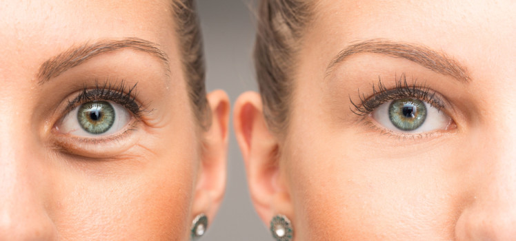 Get rid of Crows Feet