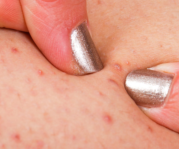 What is folliculitis