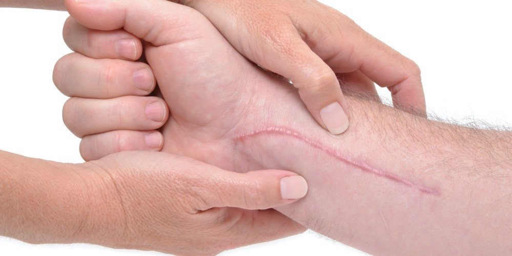 Hypertrophic Scars Treatment