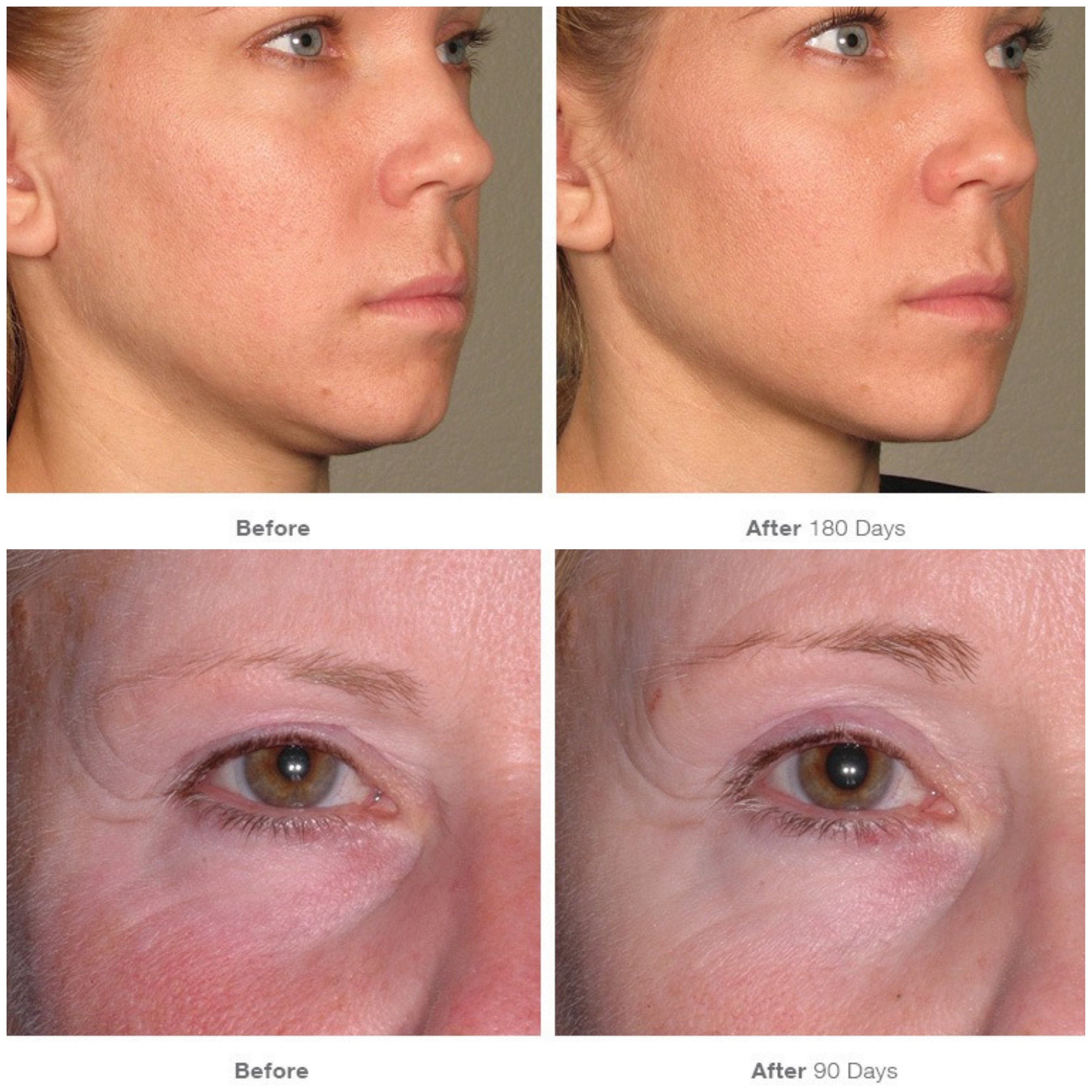 Ultherapy Before & Afters