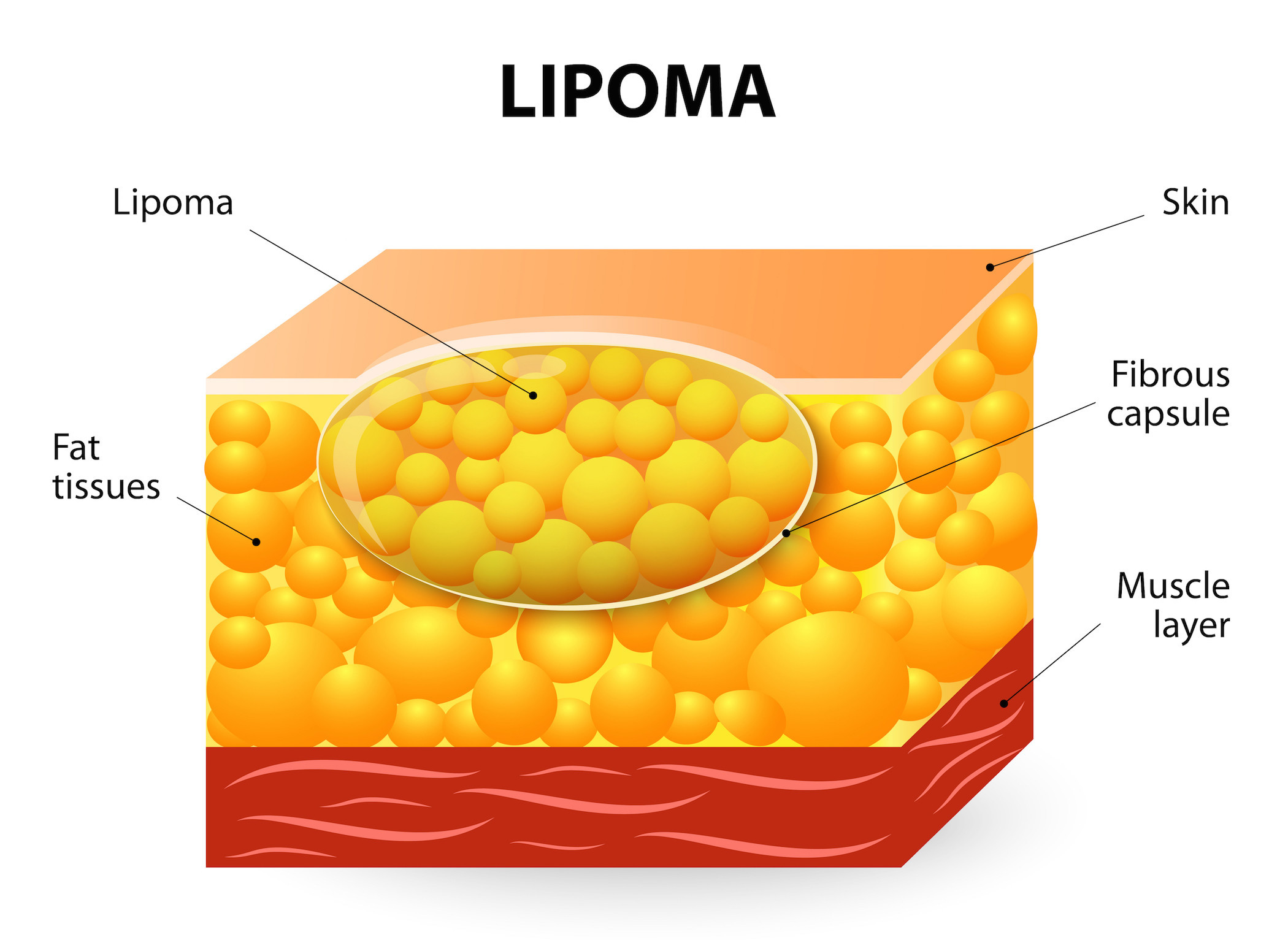 Lipoma removal the most effective method 75