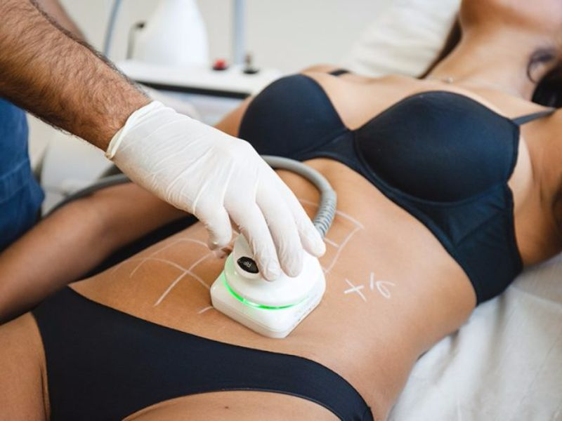 How To Choose The Best Non Surgical Fat Removal Treatment Zwivel
