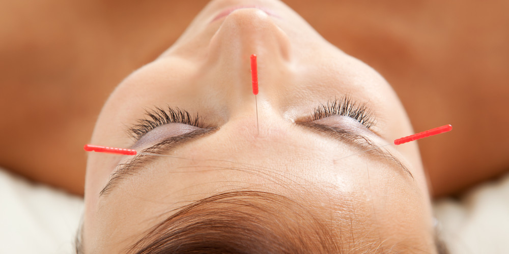 Is Cosmetic Acupuncture the new botox?
