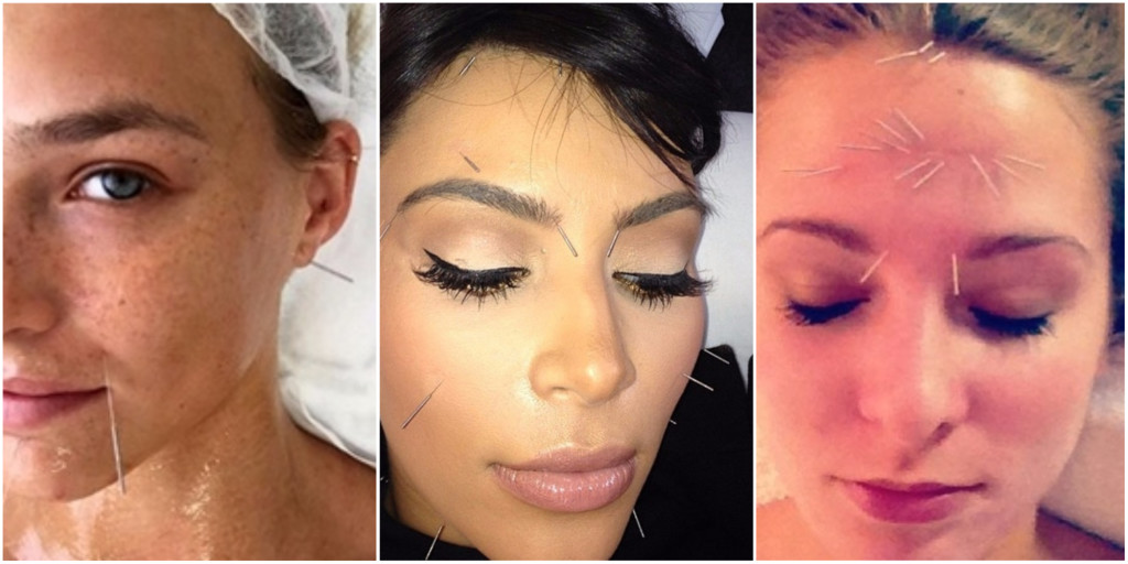 celebrities facial acupuncture