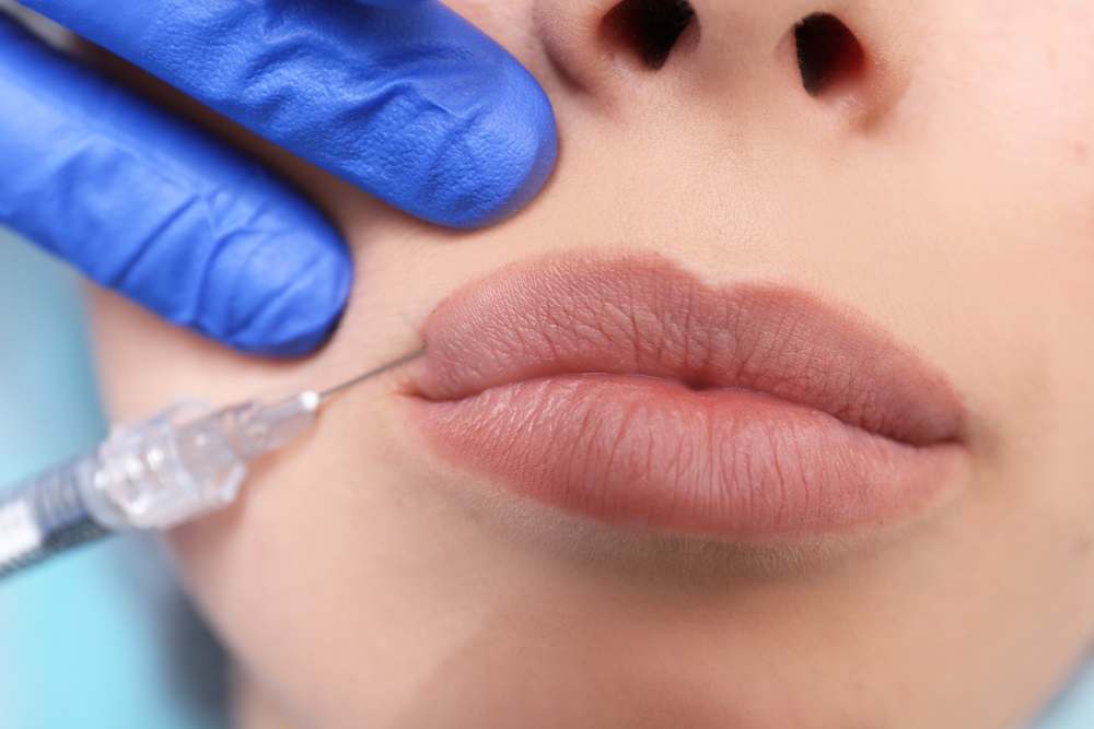 Hyaluronidase Injection Dissolves Fillers: Cost, Pictures