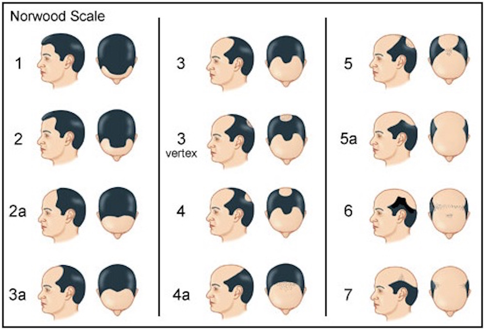 Norwood Scale for hair loss