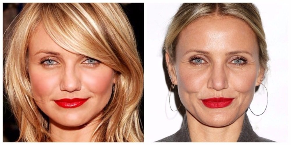 Cameron Diaz, before and after rhinoplasty.