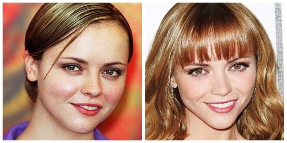 Christina Ricci, before and after plastic surgery.