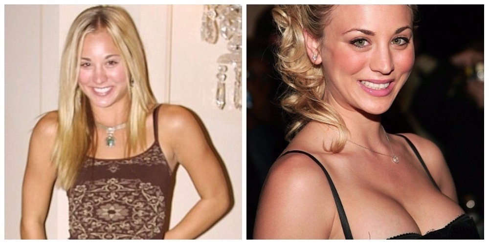 Kelly Cuocu, before and after BBT.