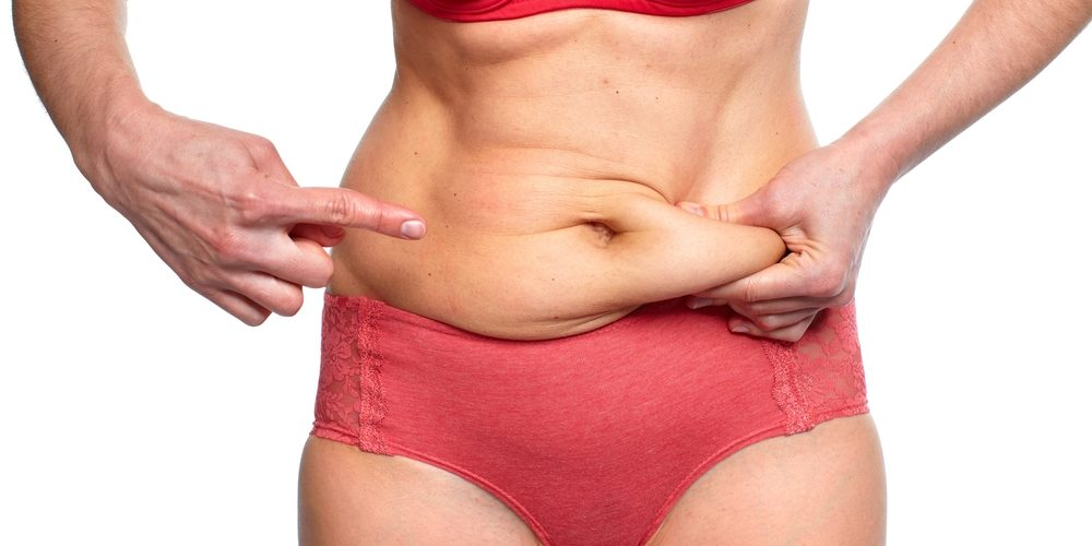 Tightening Loose Skin After Liposuction
