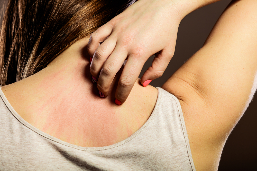 The Mysterious Stress Rash: What It Is and What You Can Do