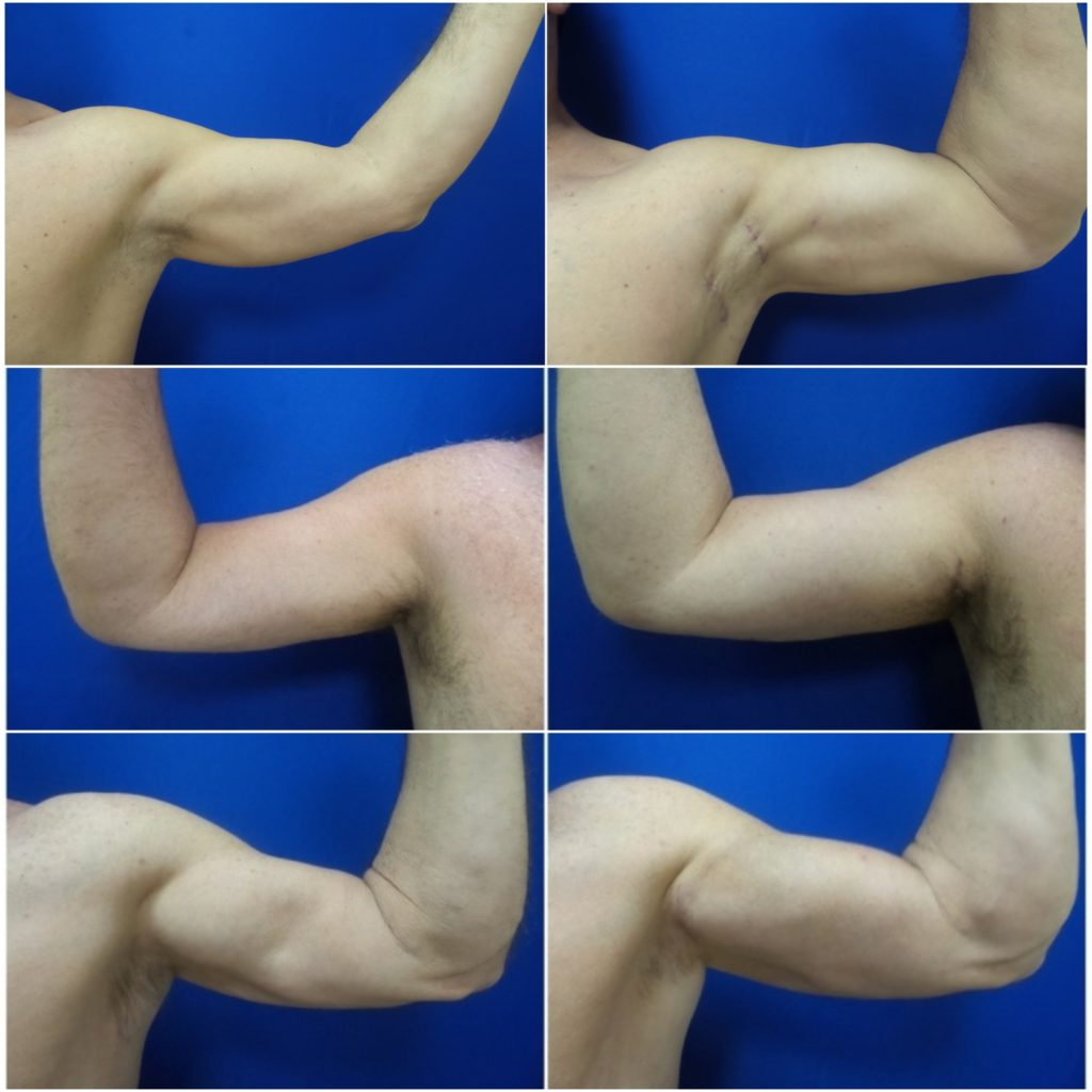 before after biceps implants