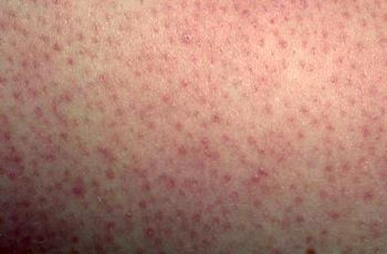 Keratosis Pilaris: Causes, Symptoms, Picture, and Treatments