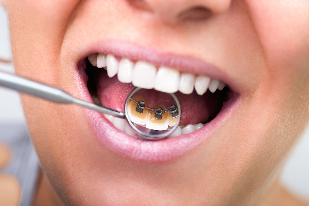 Lingual braces the pros and cons of invisible teeth straighteners solutioingenieria Images