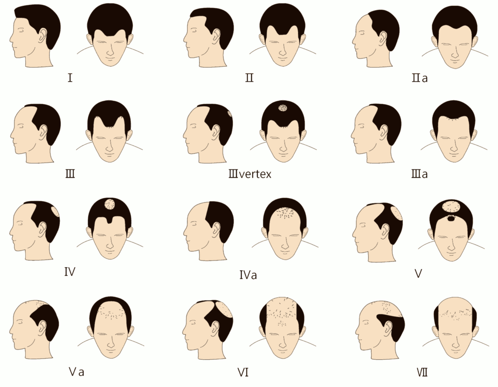 Early Male Pattern Baldness Signs Magnificent Inspiration Ideas