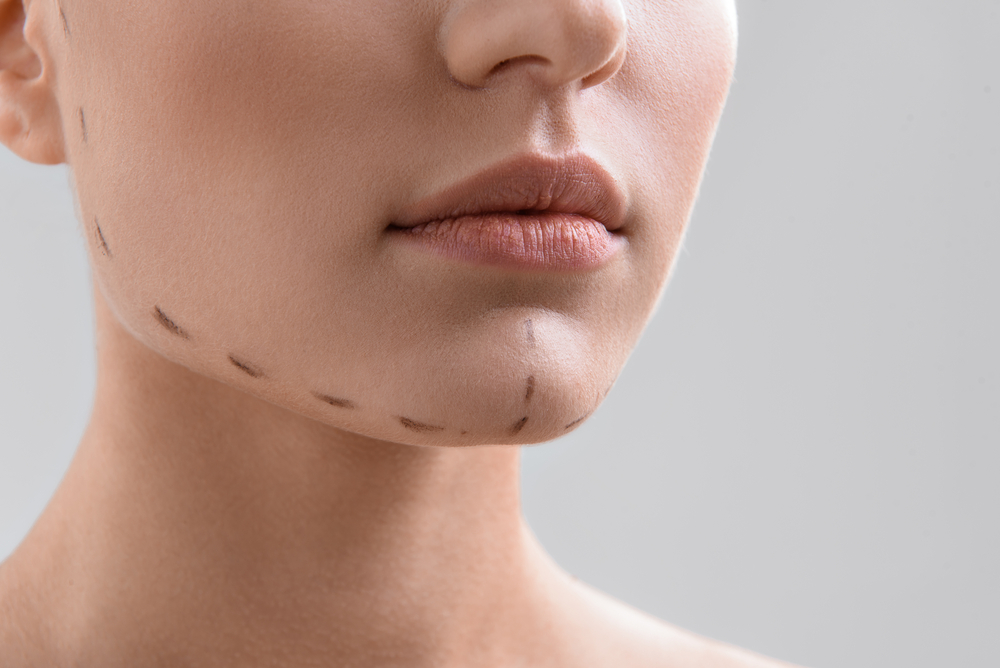 Sliding Genioplasty: Everything About This Chin Enhancement