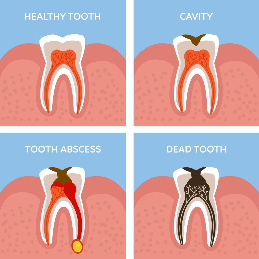 I Think I Have a Dead Tooth — What Do I Do?