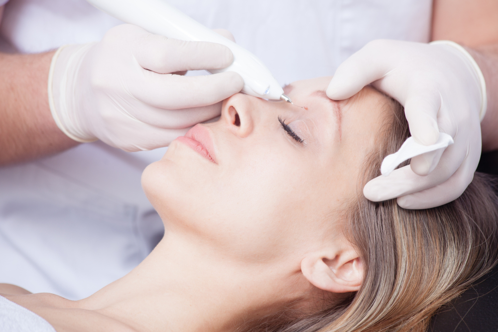 Facial Warts: How to Identify and Treat This Common Nuisance
