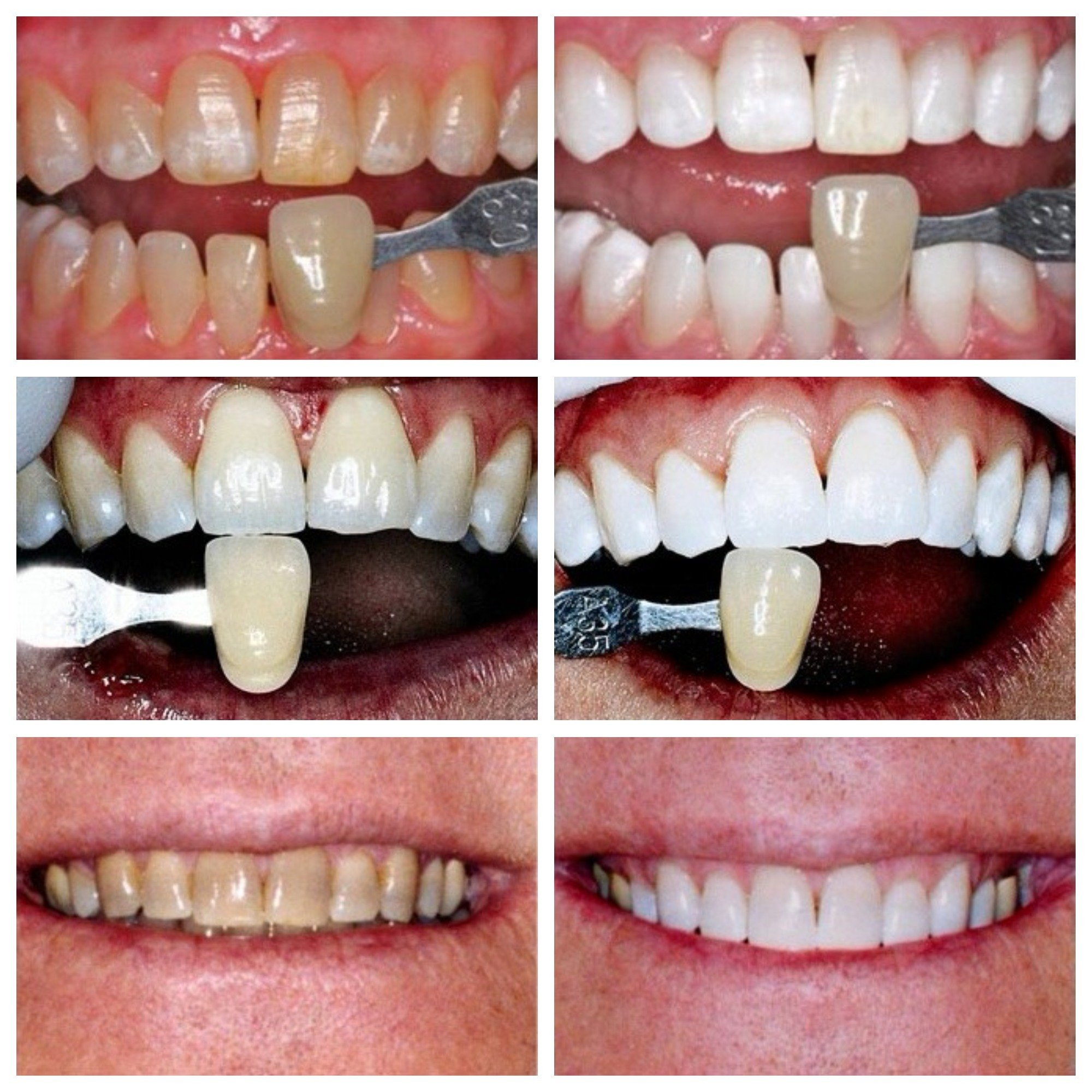 KöR Whitening Before and After