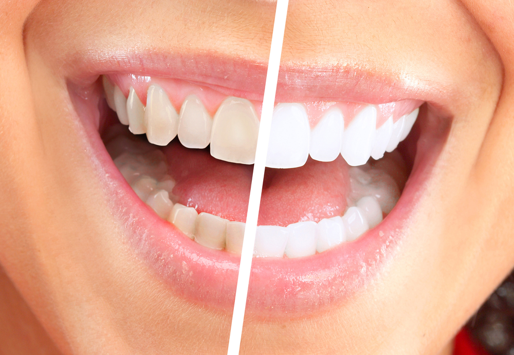 Everything You Need To Know About The Kr Teeth Whitening System