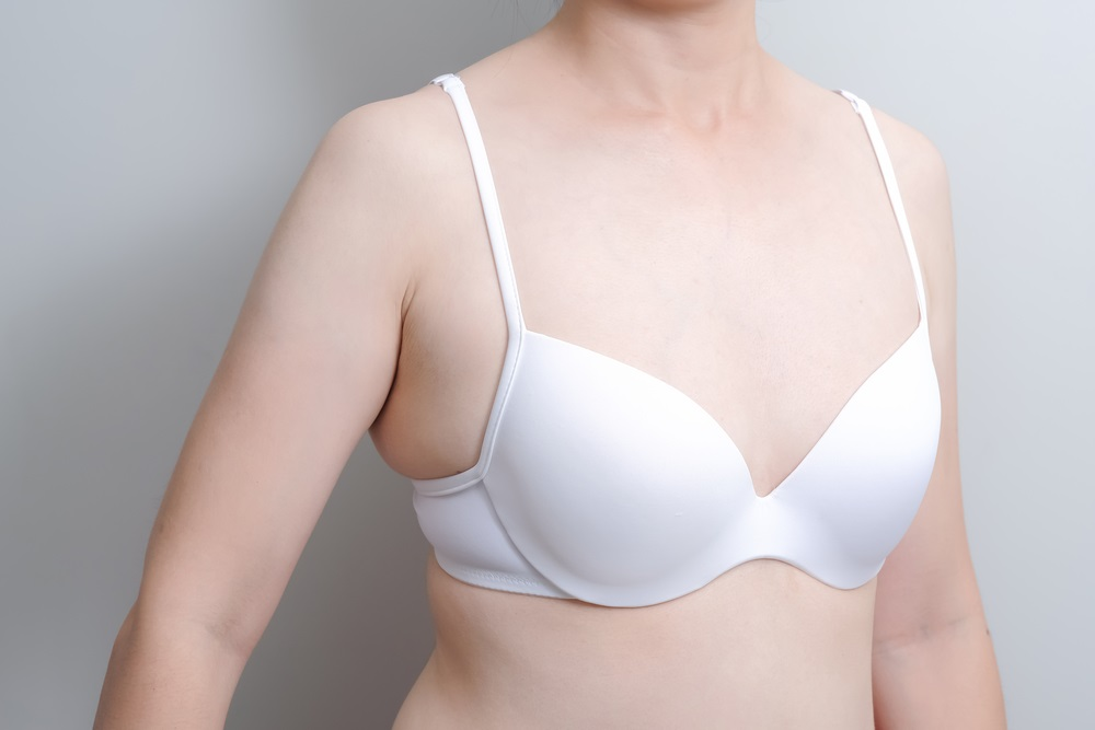 dc9c0fe28b Armpit Fat Removal  The Best Ways to Deal With Bra Bulge