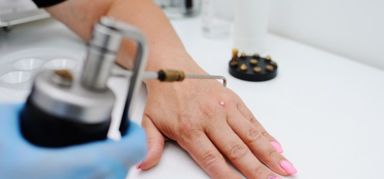 wart removal