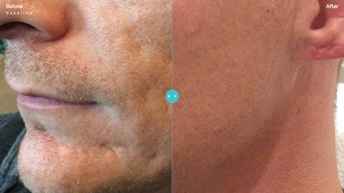 Bellafill Acne Scars Before & After