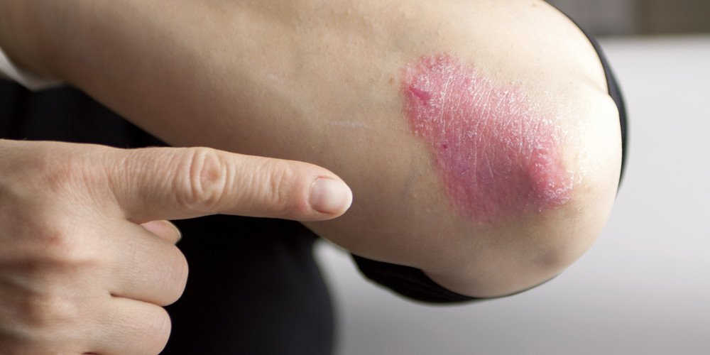 Laser treatments for Psoriasis