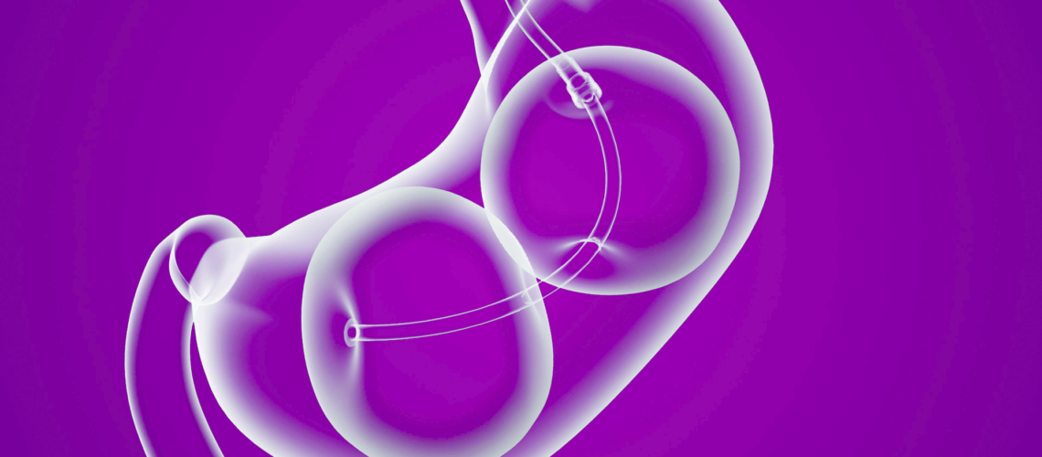 Gastric Balloons