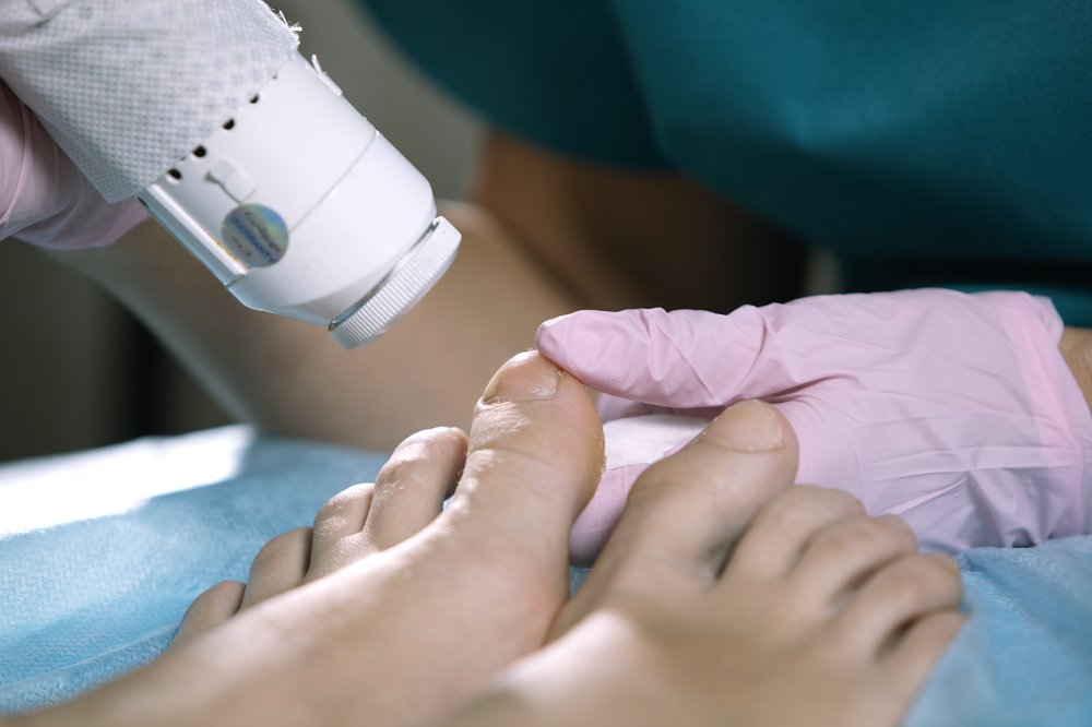 Can Laser Treatments Cure Toenail Fungus? What the Research Shows