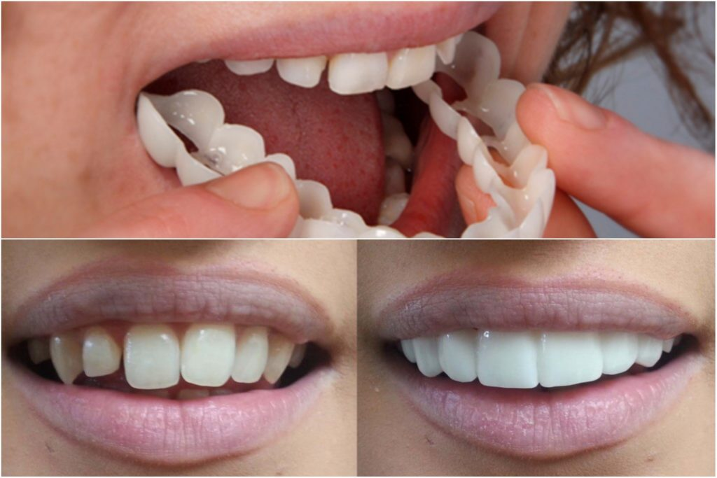 Snap On Smile Review Before And After Pros And Cost