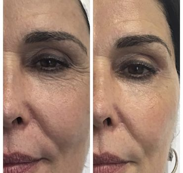 Cryotherapy Facials (Frotox): Does It Work, Side Effects