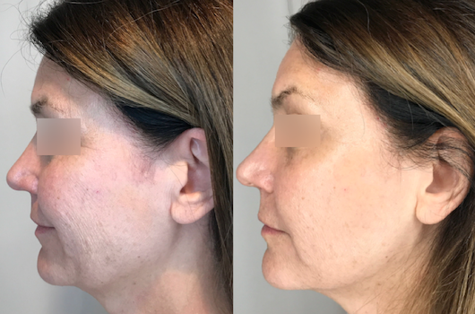 Cryotherapy B&A