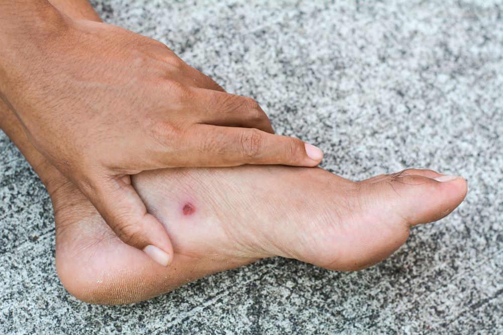 Skin Ulcers  Types  Causes And Effective Treatment Options
