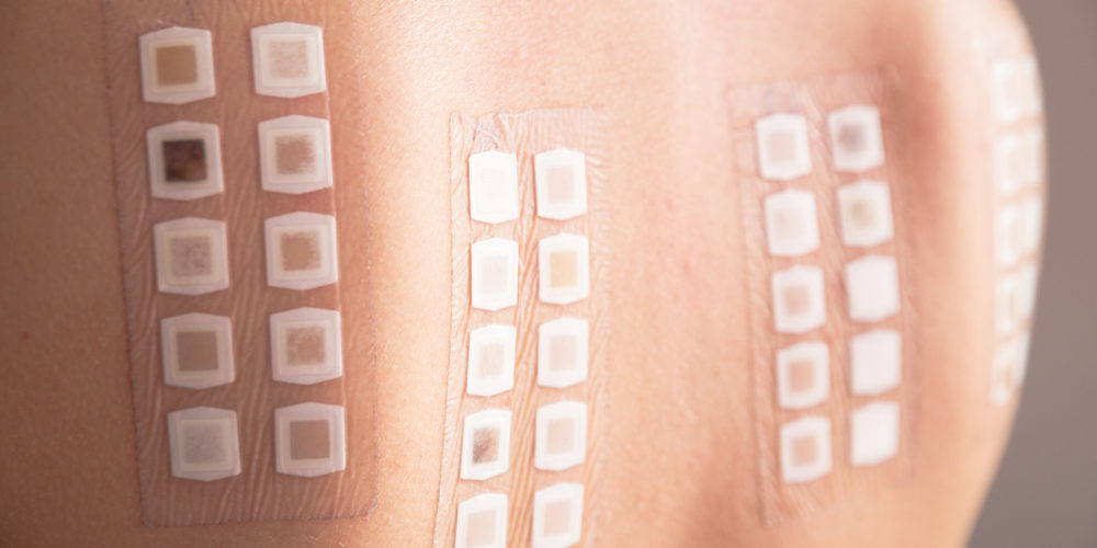 Skin Tests for allergies