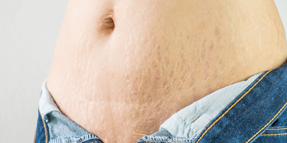 Retin-A for stretch marks