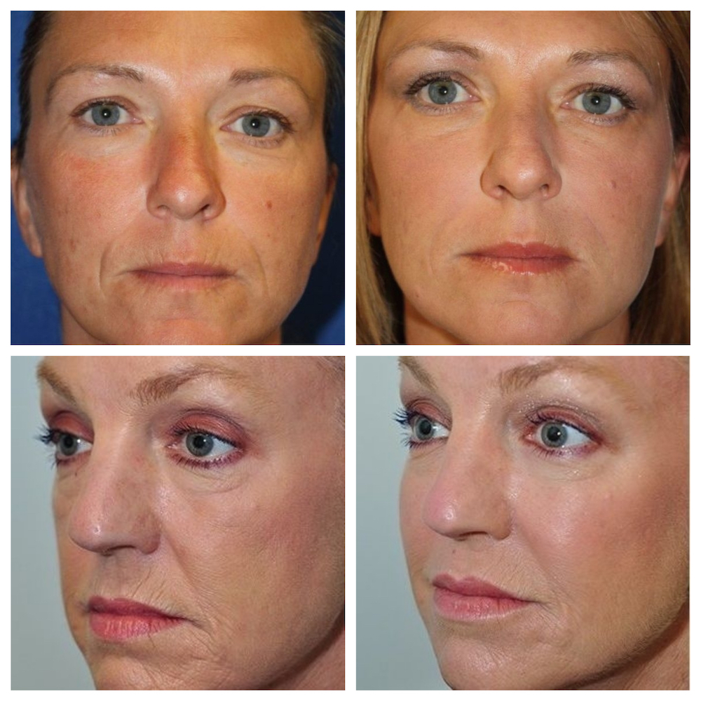 Juvederm Before and After Nose