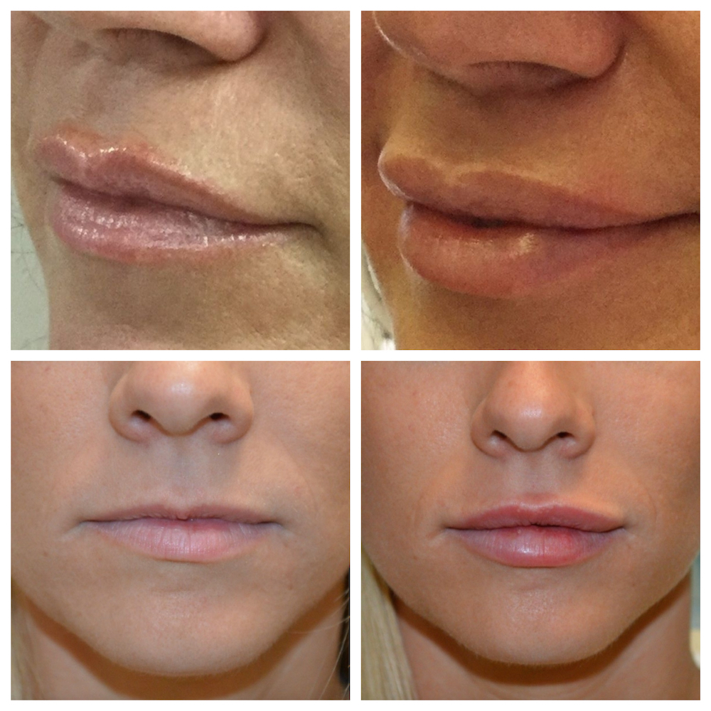 Juvederm Before and After Lips