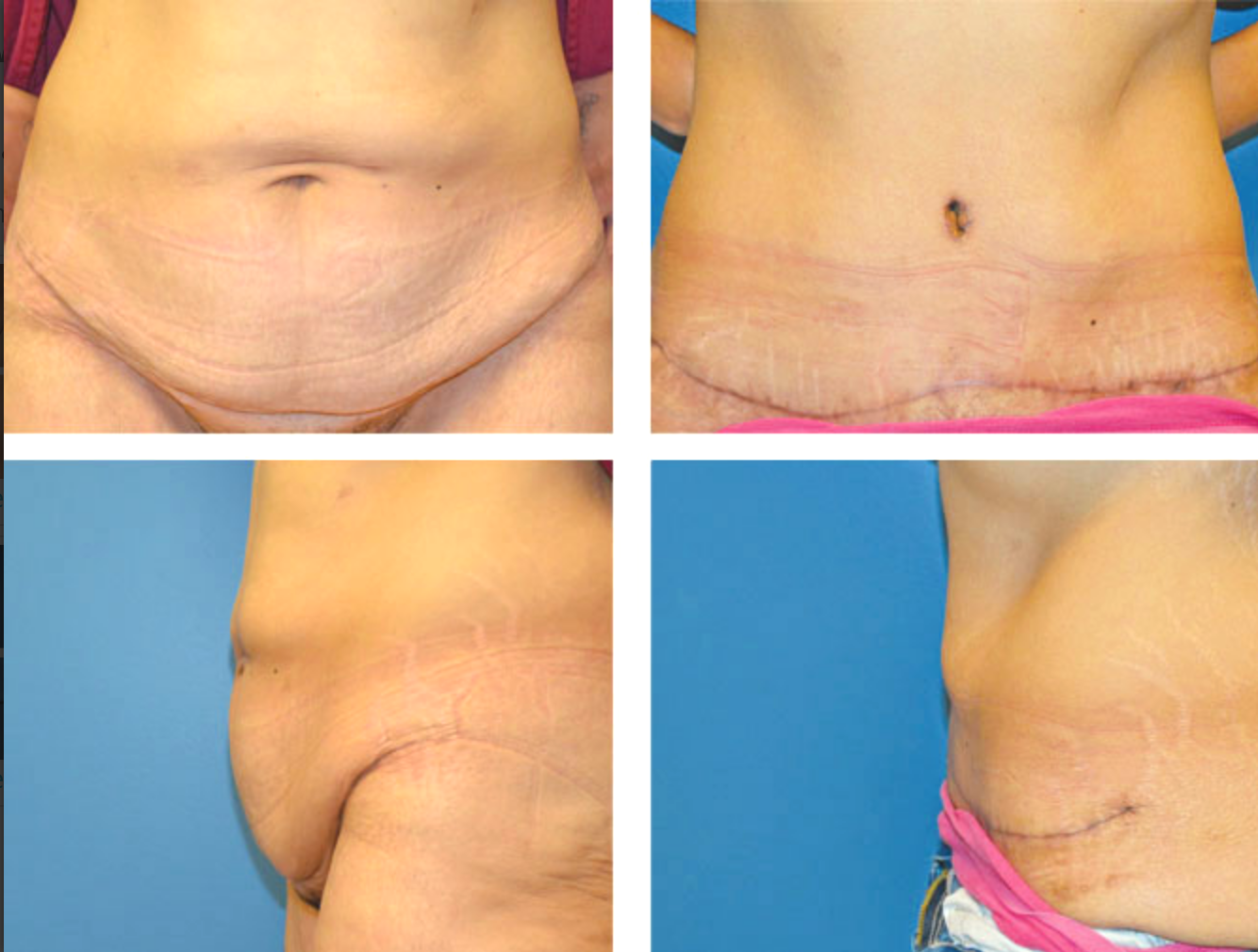 Panniculectomy Procedure Recovery Pictures And Cost