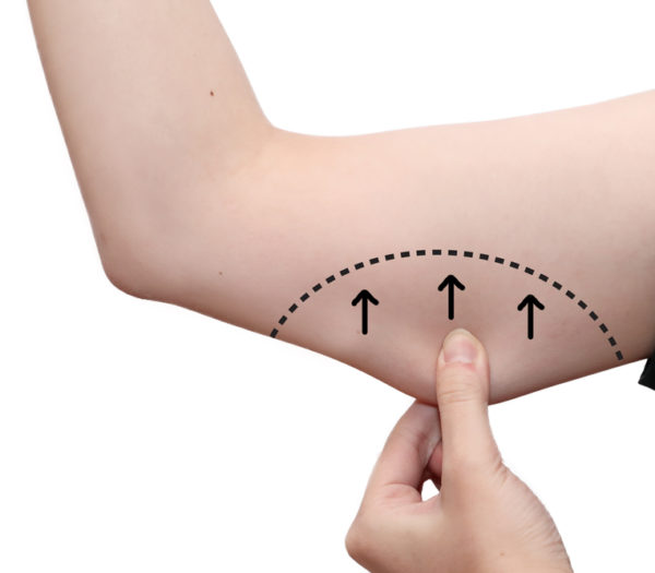 Coolsculpting arms