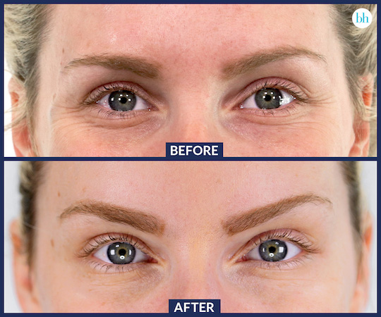 Botox Under Eyes: Does It Work, Before and Afters, Side Effects and Cost