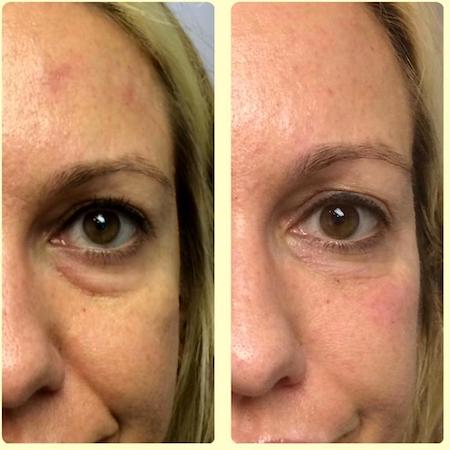 Botox Under Eyes: Does It Work, Before and Afters, Side