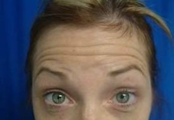Before forehead line Botox injections