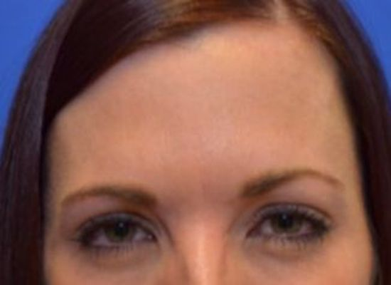 After Glabellar line injections