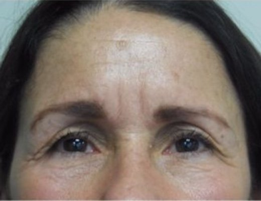 Before Glabellar line injections
