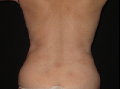 coolsculpting after flanks